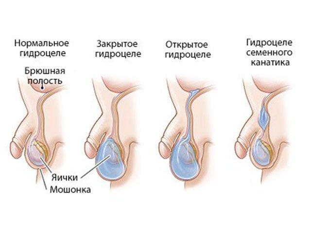 Различные виды водянки яичка