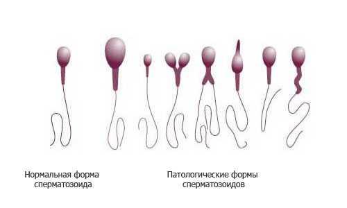 Нормальное строение спермия и патологические формы сперматозоидов