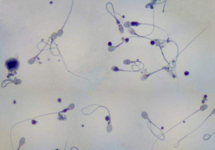 Малое количество сперматозоидов в образце под микроскопом