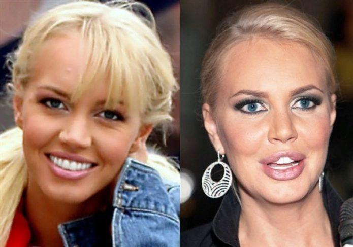 10 знаменитостей, которым неудачно «сделали» губы