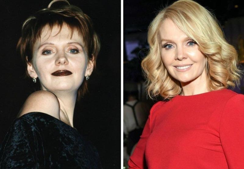 10 знаменитостей, которые сильно изменились за последние 20 лет
